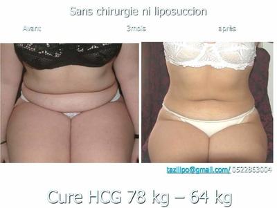 La cure HCG, pour se débarrasser efficacement des kilos superflus